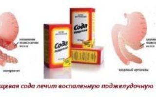 Лечение панкреатита поджелудочной железы содой