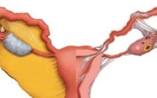 Инволюция тимуса: основные виды — акцидентальная, возрастная, неполная, физиологическая, жировая, возраст изменений