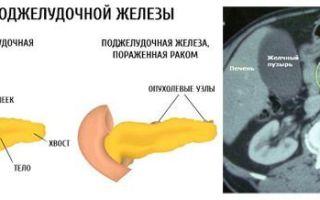 Мрт поджелудочной железы: подготовка к обследованию, показания, что показывает — диффузные изменения, рак, кисты, размеры, кт или мрт, с контрастом