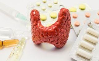 Отеки при гипотиреозе (фото): как избавиться (народные средства, диета, терапия)