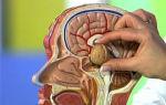 После удаления аденомы гипофиза: состояние после операции, восстановление, реабилитация, осложнения — потерял нюх, несахарный диабет, болит голова, мрт, лечение