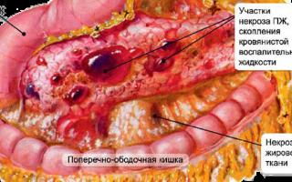 Острый геморрагический панкреонекроз — причины