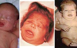 Кретинизм (у детей и взрослых): причины, симптомы, лечение, диагностика, профилактика