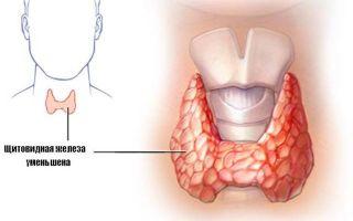 Уменьшенная щитовидная железа — причины, симптомы, лечение и последствия