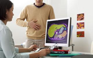 Хронический билиарнозависимый панкреатит — лечение и симптомы