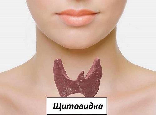 Киста щитовидной железы: лечение, симптомы (у женщин, мужчин, детей), чем опасна, причины, последствия