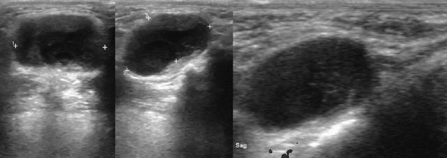 Классификация по равномерности увеличения щитовидной железы