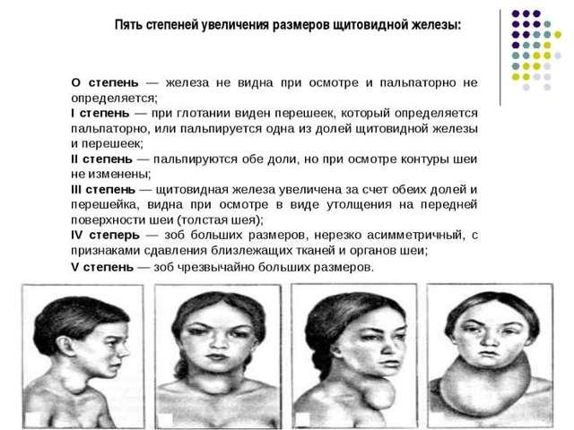 Виды зоба щитовидной железы (по степеням, влиянию на количество гормонов, равномерности увеличения)