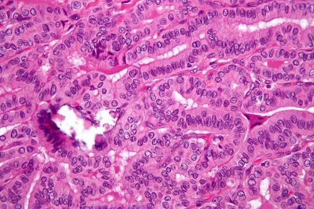 Микрокарцинома щитовидной железы: симптомы, лечение и профилактика заболевания