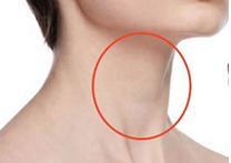 Токсический зоб щитовидной железы