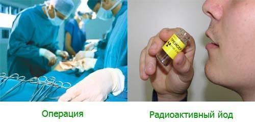 Узловой токсический зоб: симптомы, причины, лечение и осложнения