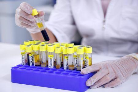 Анализ крови на ТТГ: как сдавать правильно, подготовка, что показывает, как расшифровать