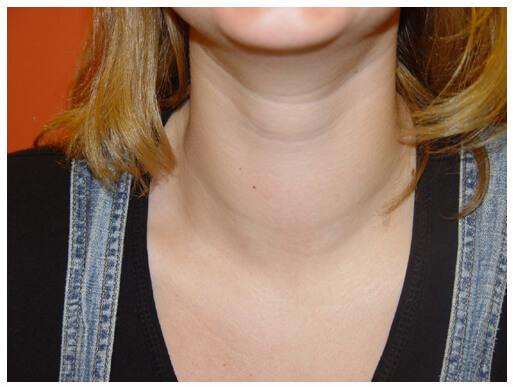Увеличение щитовидной железы - симптомы, лечение, профилактика (фото)