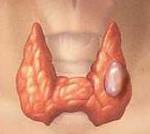 Фолликулярный рак щитовидной железы: прогноз, лечение и симптомы болезни