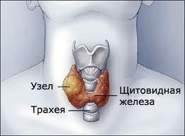 Узел щитовидной железы при нормальных гормонах