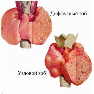 Першение и боли в горле при глотании при щитовидке: симптомы, лечение