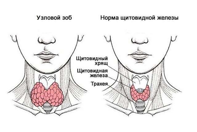 Лечение узлового зоба щитовидной железы народными средствами