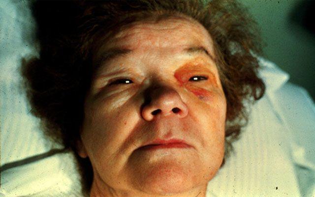 Гипотиреоидная кома: неотложная помощь, симптомы (фото), причины и лечение