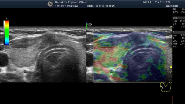 Классификация рака щитовидной железы