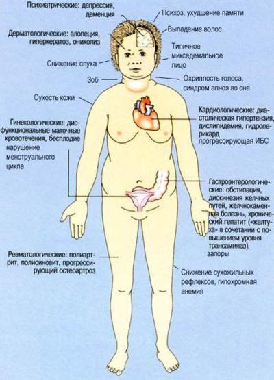 Виды аутоиммунного тиреоидита