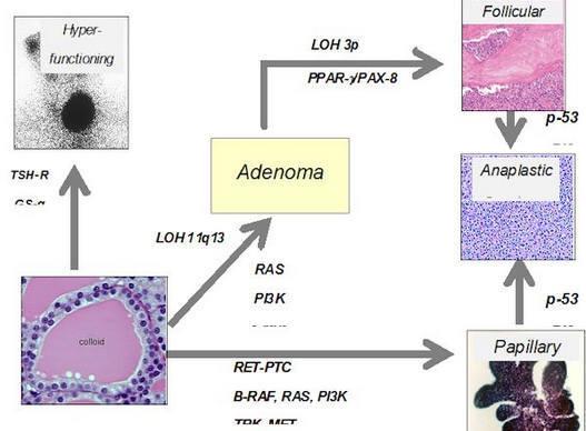 Диффузные изменения паренхимы щитовидной железы: признаки, лечение и профилактика