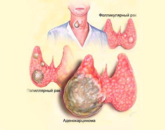 Злокачественная опухоль щитовидной железы: симптомы, лечение, прогноз (сколько живут), последствия