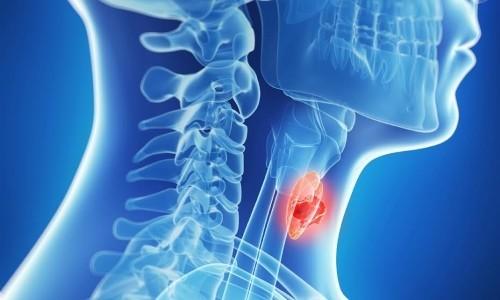 Аутоиммунный тиреоидит и гипотиреоз: отличия, симптомы, диагностика и лечение заболеваний