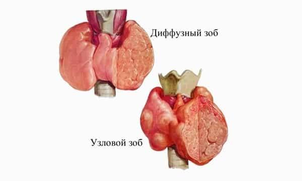 Виды тиреотоксикоза