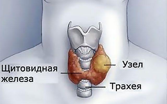 Каким должен быть нормальный размер узлов щитовидной железы