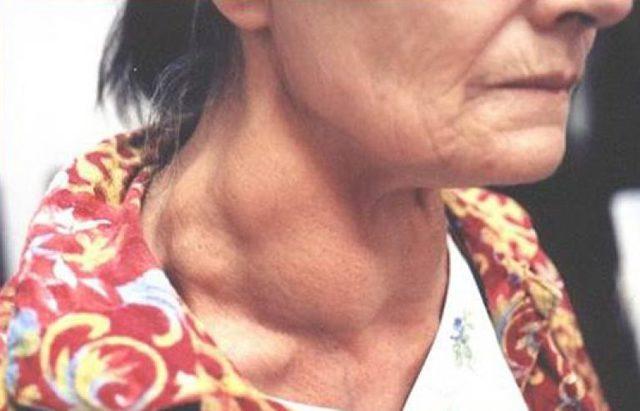 Медуллярный рак щитовидной железы: симптомы, срок развития метастаз, прогноз и лечение болезни