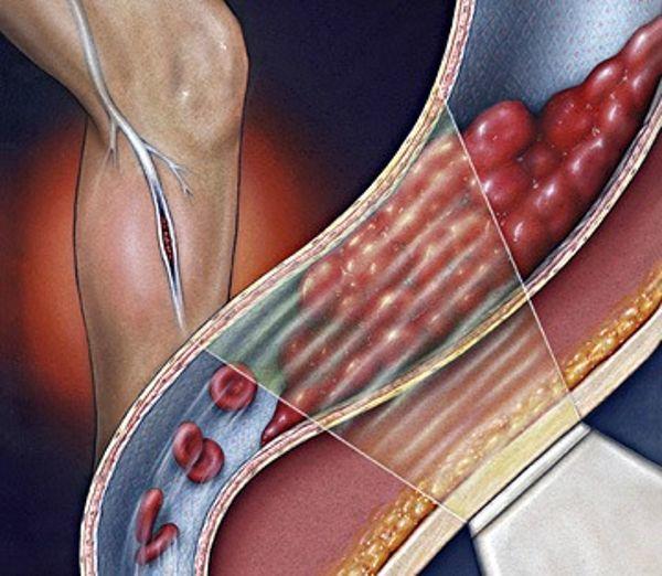 Алкоголь и щитовидная железа: влияние и взаимосвязь