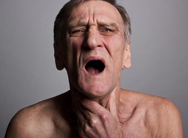 Опухоли паращитовидных желез: симптомы, причины, виды, диагностика и лечение