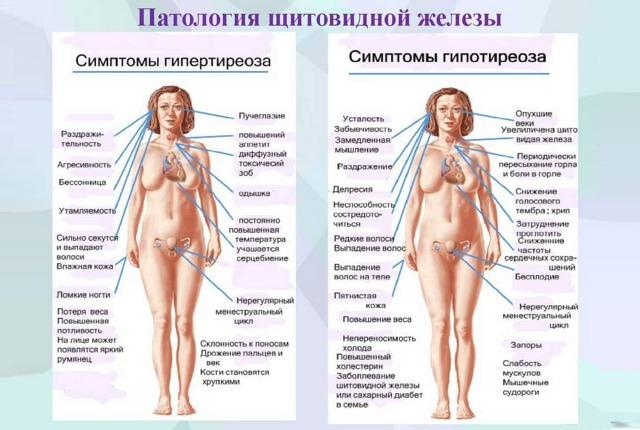 Как лечить щитовидку в домашних условиях: диета, народные средства, физические упражнения, медикаменты