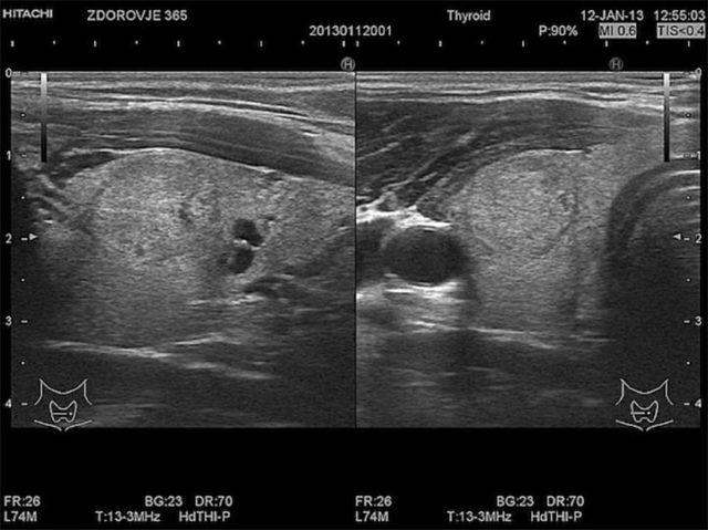 Фолликулы щитовидной железы: увеличенные, симптомы заболеваний, лечение
