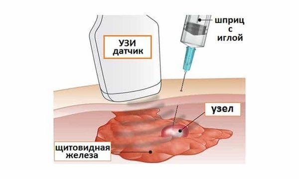 ТАБ щитовидной железы: показания и противопоказания, где сделать, подготовка, ход процедуры, результаты, последствия, отзывы
