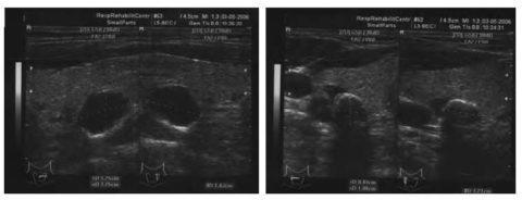 Гиперплазия паращитовидной железы: причины, симптомы, диагностика, лечение, прогноз