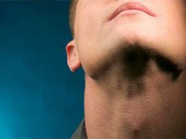 Диффузно-узловой зоб щитовидной железы: причины, симптомы, диагностика и лечение заболевания