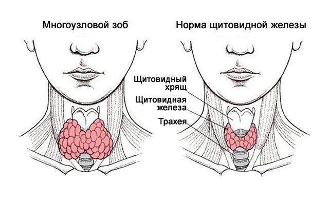 Жизнь без щитовидной железы: как и сколько живут (отзывы)