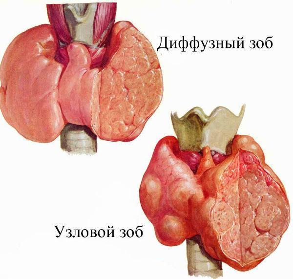 Зоб щитовидной железы: симптомы (фото), причины, лечение и диагностика заболевания