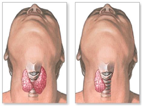 Последствия удаления щитовидной железы