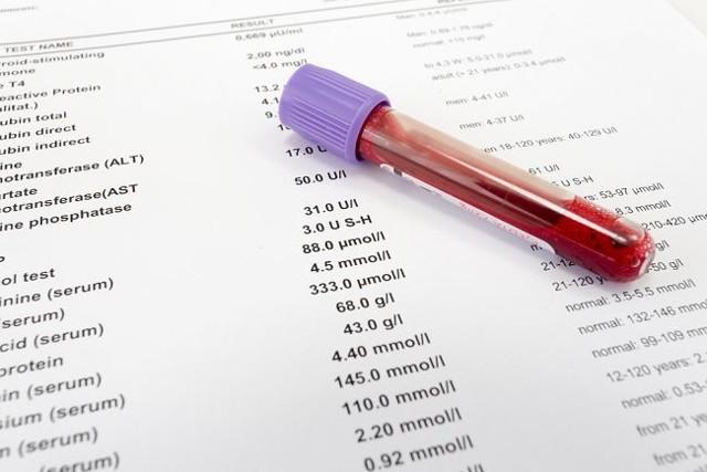 Тироксин (Т4) свободный: за что отвечает, анализ, нормы, повышение уровня (причины и лечение)