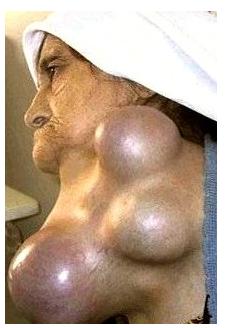 Узловой зоб щитовидной железы: лечение, симптомы, диагностика, профилактика