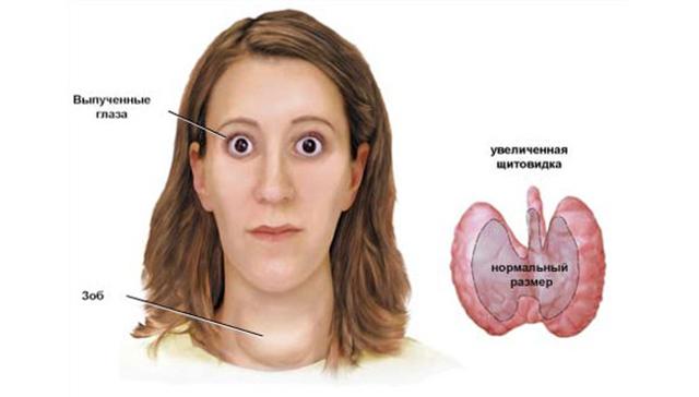 Дискомфорт в щитовидной железе: причины, заболевания