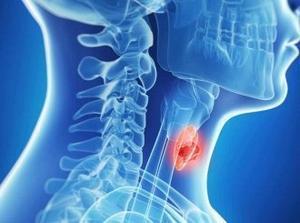 Аплазия левой доли щитовидной железы: причины, признаки и лечение