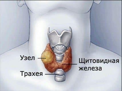 Горячий узел щитовидной железы: горячие и холодные узлы, причины, симптомы, диагностика, лечение, профилактика