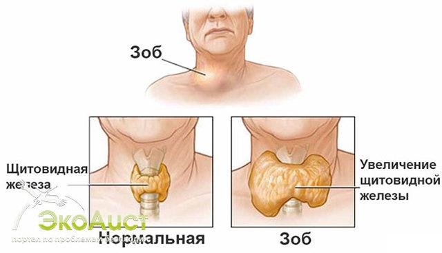 Токсический зоб щитовидной железы: симптомы, диагностика, виды, лечение, осложнения и профилактика заболевания