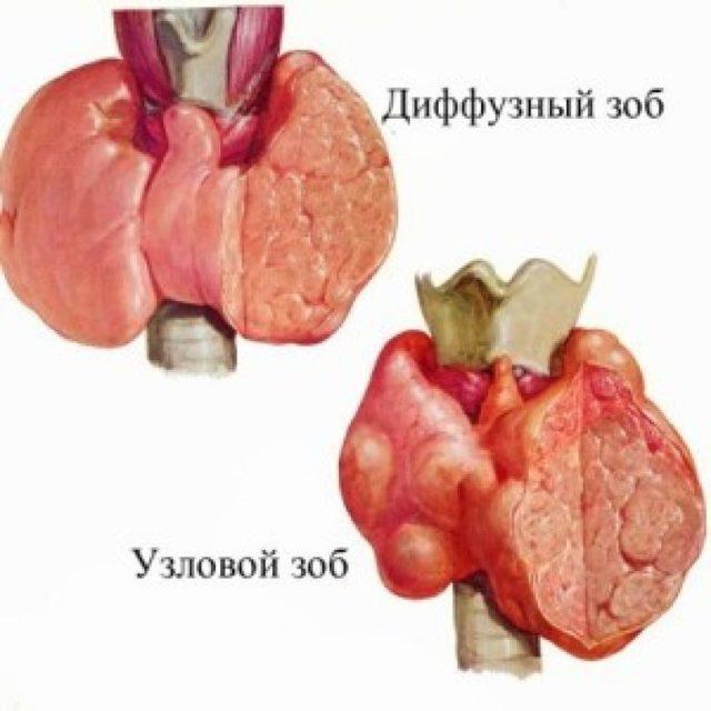 Эутиреоидный зоб: симптомы, лечение, причины, диагностика, профилактика заболевания