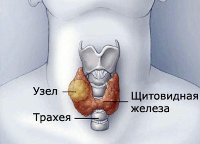Изоэхогенное образование щитовидной железы: причины, симптомы и лечение