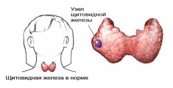 Что делать, если обнаружены узлы на щитовидке: симптомы, лечение, профилактика