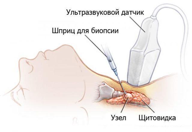 Пункция щитовидной железы (под контролем УЗИ): что такое, как берут, подготовка, результаты и последствия проведения